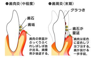 歯周病説明資料